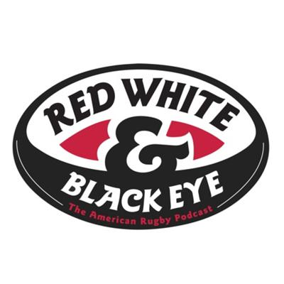 Red, White, and Black Eye