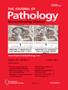 Journal of Pathology - June 2011