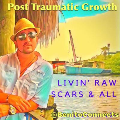 Post Traumatic Growth- A guide to Livin' Raw Scars & All