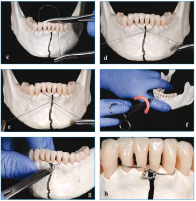 Cover art for Case 3 - Fracture stabilisation - Mandible Trauma